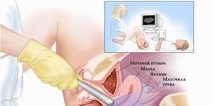 Неоднородный эндометрий: что это значит