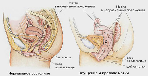 Беременность при опущении матки