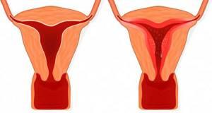 Гиперплазия эндометрия в менопаузе: симптомы, лечение