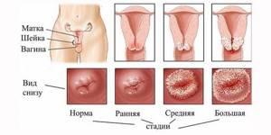 Эндоцервикоз шейки матки: что это такое, фото