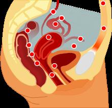 Чем опасен эндометриоз: последствия и осложнения?