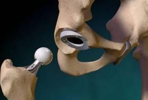 Можно ли рожать после эндопротезирования тазобедренного сустава
