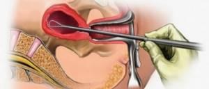 Выскабливание при гиперплазии эндометрия: методы проведения и отзывы