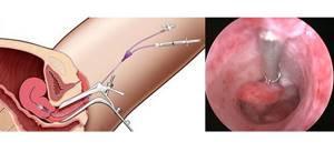 Гиперплазия эндометрия: что это и как лечить, чем опасна, последствия