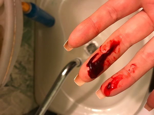 Сгустки крови при месячных: причины выхода кусков, похожих на печень