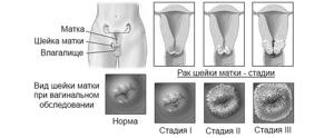 Диагностика рака шейки матки: анализы и процедуры