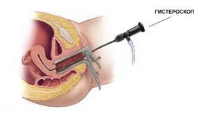 Железисто-фиброзный полип эндометрия: что это такое, лечение после удаления