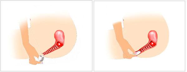 Менструальная чаша (капа): что это такое и как пользоваться