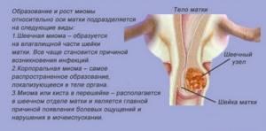 Миома шейки матки: симптомы и лечение, допустимые размеры