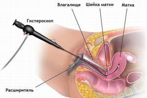 Полипы на яичниках: что это такое и как лечить