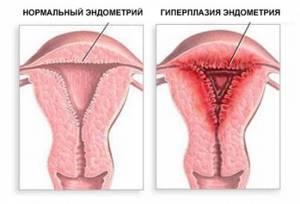 Толщина эндометрия для зачатия: норма, чтобы забеременеть