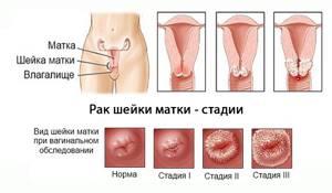 Профилактика рака шейки матки: методы предотвращения опухоли