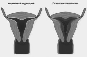 Норколут при гиперплазии эндометрия: инструкция по применению, отзывы