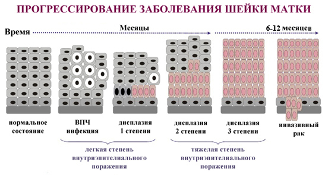 Дисплазия шейки матки 2 степени: что это такое, лечение, отзывы