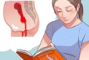 Полип эндометрия в матке: что это такое и как лечить
