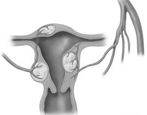 Удаление миомы матки лапароскопическим методом: отзывы, стоимость