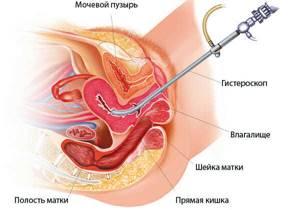 Железистая гиперплазия эндометрия: что это, лечение после 40-50 лет
