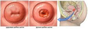 Эрозия шейки матки: причины появления у нерожавших и после родов