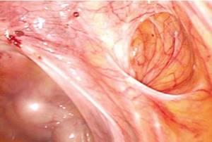 Эндометриоз шейки матки: симптомы и лечение, фото