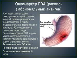 Онкомаркер на рак шейки матки: названия и нормы