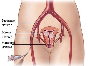 Узловая миома матки: что это такое, симптомы и чем опасна