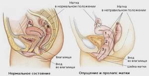 Бандаж при опущении матки