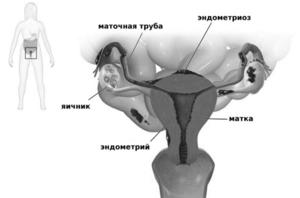 Боровая матка при эндометриозе: отзывы врачей