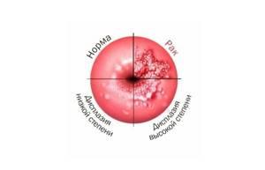 Дисплазия шейки матки: что это такое, симптомы и признаки, как лечить