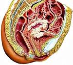 Опухоль матки: доброкачественная и злокачественная