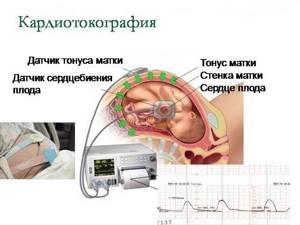 Тонус матки при беременности: симптомы в 1, 2, 3 триместре