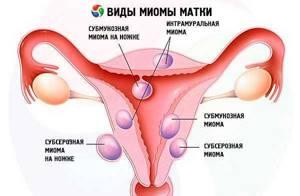 Секс при миоме матки: а можно ли?