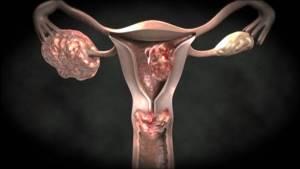 Рак матки: первые признаки и симптомы у женщин, сколько живут после операции