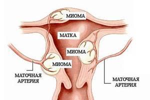 Гирудотерапия при миоме матки: лечение пиявками