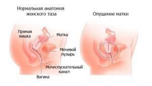 Операция при опущении матки: отзывы, цена, последствия, восстановление