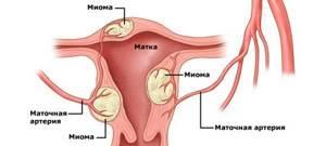 Миома матки: что это такое, как лечить, опасна ли она, фото