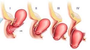 Опущение матки: симптомы и лечение, отзывы, последствия, образ жизни