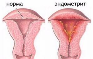 Аутоиммунный эндометрит: причины, симптомы, лечение