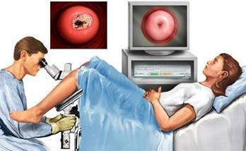 Плоскоклеточный рак шейки матки: ороговевающий, неороговевающий