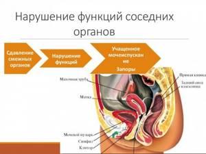 Интерстициальная миома матки: что это такое, беременность, размеры