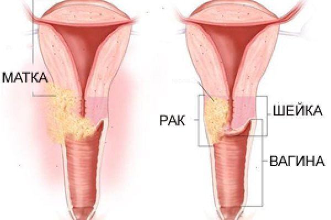 Рецидив рака шейки матки: причины, симптомы, лечение