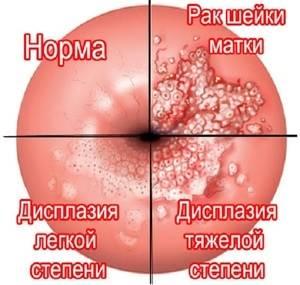 Воспаление шейки матки: причины, симптомы и лечение