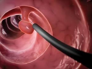 Эндоскопическая полипэктомия: что это, цена