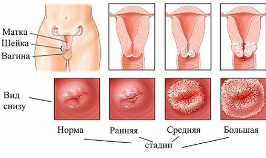 Свечи от эрозии шейки матки: список, отзывы пациенток