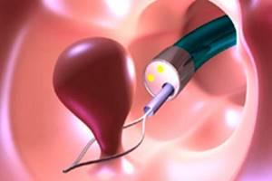 Аденоматозный полип эндометрия: причины, симптомы, лечение