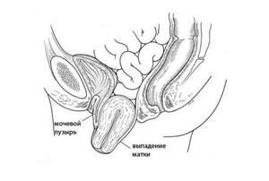 Опущение матки после родов: симптомы и лечение