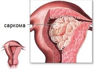 Может ли миома матки перерасти в рак