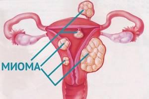 Диагностика миомы матки: УЗИ, МРТ, анализы
