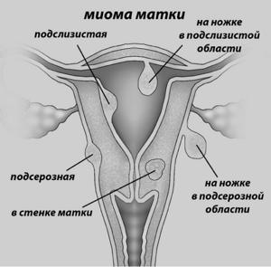 Удаление матки при миоме: последствия, отзывы