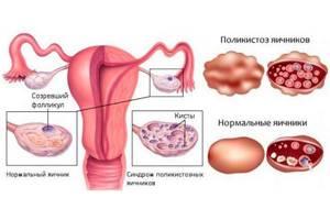 Какой должен быть эндометрий для подсадки эмбрионов при ЭКО