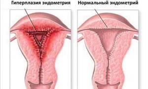 Толщина эндометрия при беременности